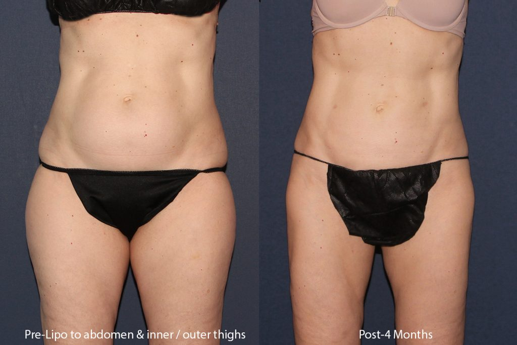 Actual unretouched patient before and after liposuction to the abdomen, flanks and thighs by Dr. Wu. Disclaimer: Results may vary from patient to patient. Results are not guaranteed.