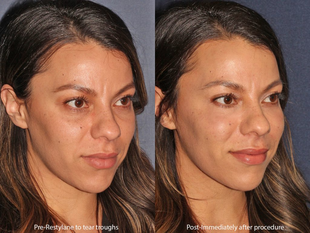 Actual un-retouched patient before and after Restylane injections for dark circles under the eyes by Dr. Butterwick. Disclaimer: Results may vary from patient to patient. Results are not guaranteed.""