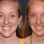 The Next Blog: Botox for Anti Aging