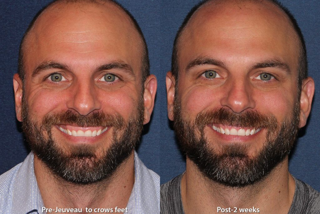 Actual un-retouched patient before and after Jeuveau for forehead lines and crow's feet by Dr. Monica Boen. Disclaimer: Results may vary from patient to patient. Results are not guaranteed.