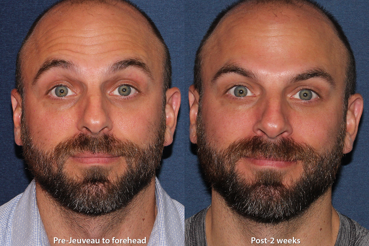 Actual un-retouched patient before and after Jeuveau to treat forehead lines by Dr. Monica Boen. Disclaimer: Results may vary from patient to patient. Results are not guaranteed.