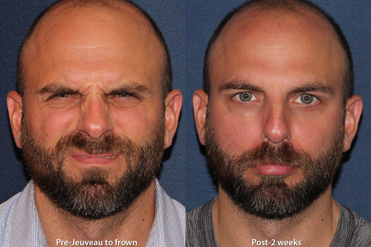 Actual un-retouched patient before and after Jeuveau to treat frown lines by Dr. Monica Boen. Disclaimer: Results may vary from patient to patient. Results are not guaranteed.