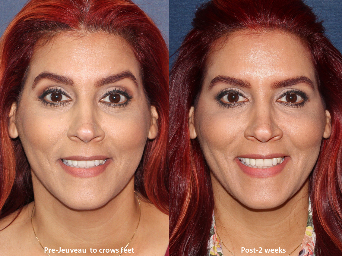 Actual unretouched patient before and after Jeuveau injections in the forehead by Dr. Boen. Disclaimer: Results may vary from patient to patient. Results are not guaranteed.