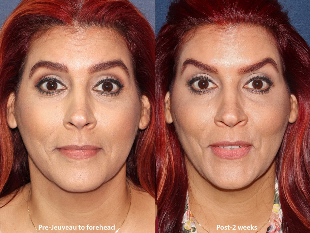Actual unretouched patient before and after Jeuveau treatment for forehead lines by Dr. Boen. Disclaimer: Results may vary from patient to patient. Results are not guaranteed.