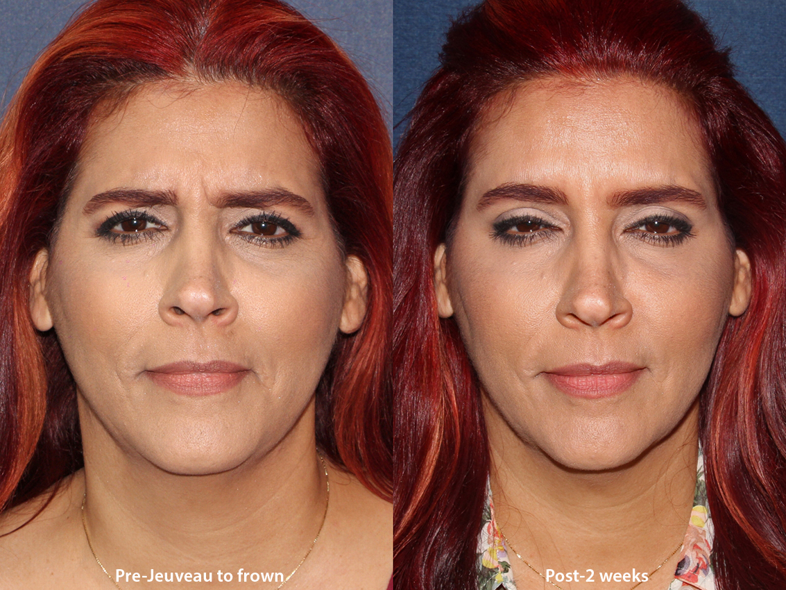 Actual un-retouched patient before and after Jeuveau injections to treat frown lines by Dr. Boen. Disclaimer: Results may vary from patient to patient. Results are not guaranteed.