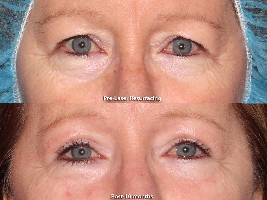 Actual unretouched patient before and after laser resurfacing around the eyes by Dr. Groff. Disclaimer: Results may vary from patient to patient. Results are not guaranteed.