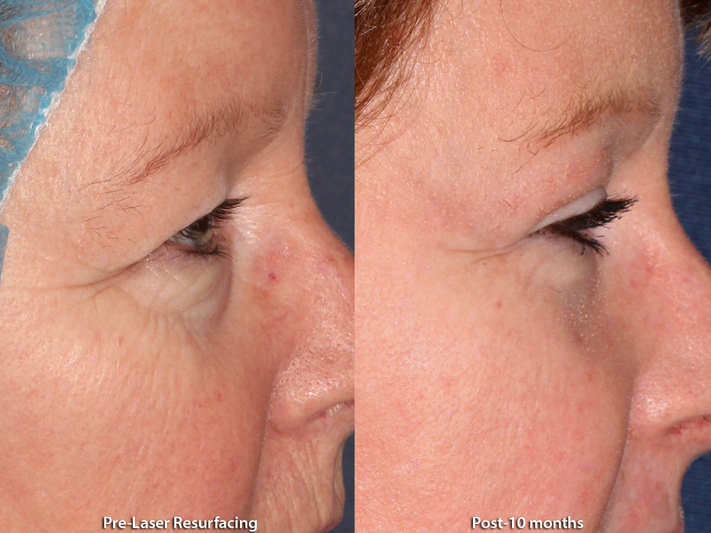 Actual unretouched patient before and after laser resurfacing by Dr. Groff. Disclaimer: Results may vary from patient to patient. Results are not guaranteed.