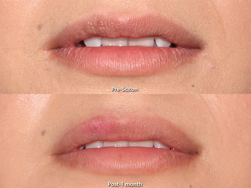 Actual unretouched patient before and after Sciton laser treatment to remove benign intradermal nevus by Dr. Goldman. Disclaimer: Results may vary from patient to patient. Results are not guaranteed.