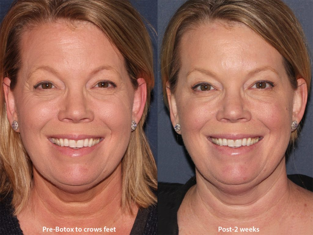 Actual un-retouched patient before and after Botox injections in the crow's feet and forehead by Dr. Wu. Disclaimer: Results may vary from patient to patient. Results are not guaranteed.