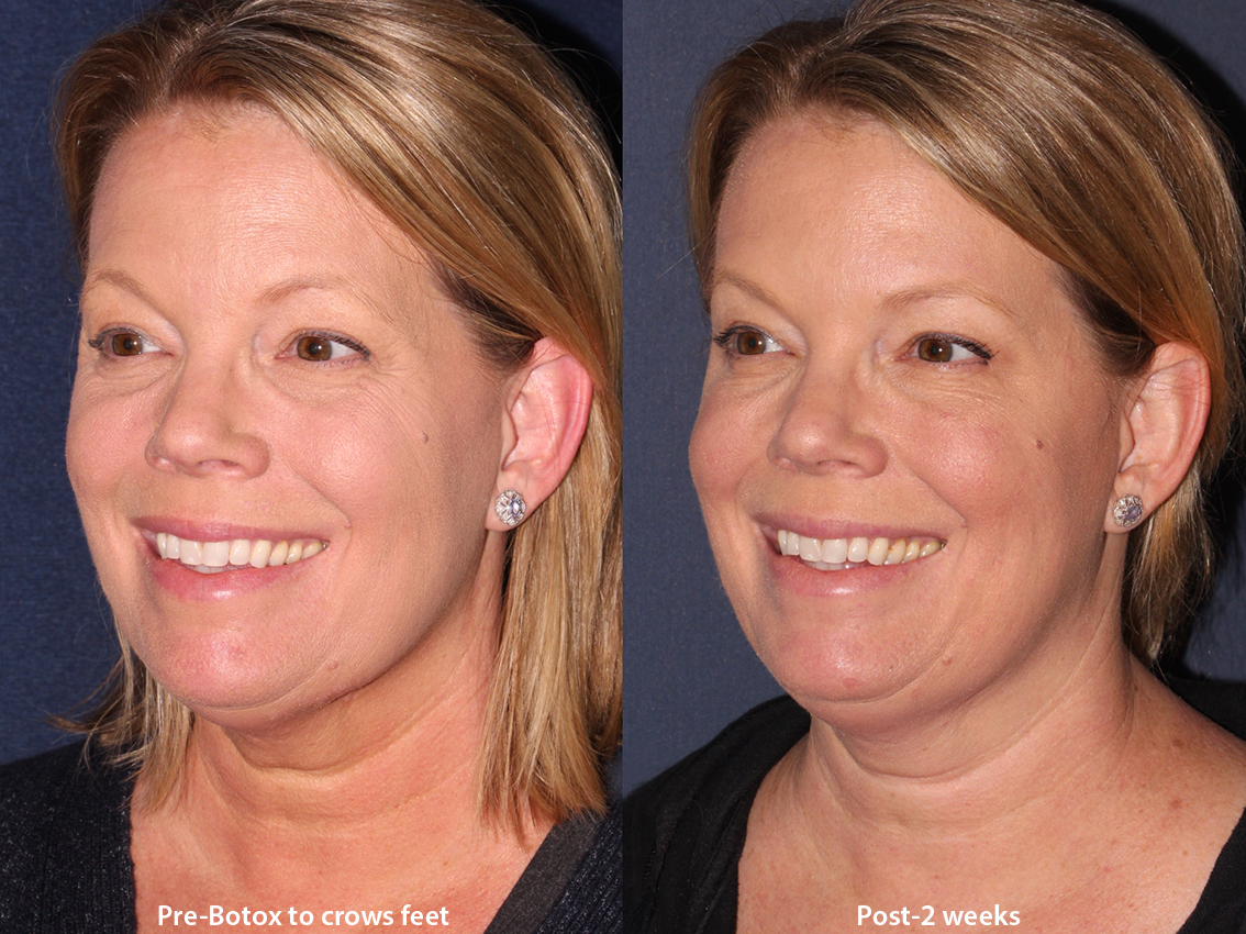 Actual unretouched patient before and after Botox injections to the crow's feet by Dr. Wu. Disclaimer: Results may vary from patient to patient. Results are not guaranteed.