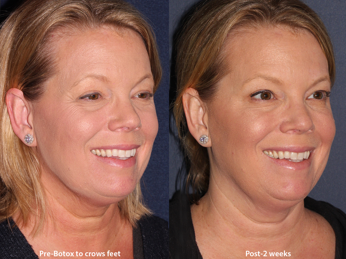 Actual un-retouched patient before and after Botox injections to treat crow's feet by Dr. Wu. Disclaimer: Results may vary from patient to patient. Results are not guaranteed.