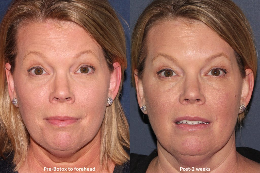 Actual unretouched patient before and after Botox injections to the forehead by Dr. Wu. Disclaimer: Results may vary from patient to patient. Results are not guaranteed.