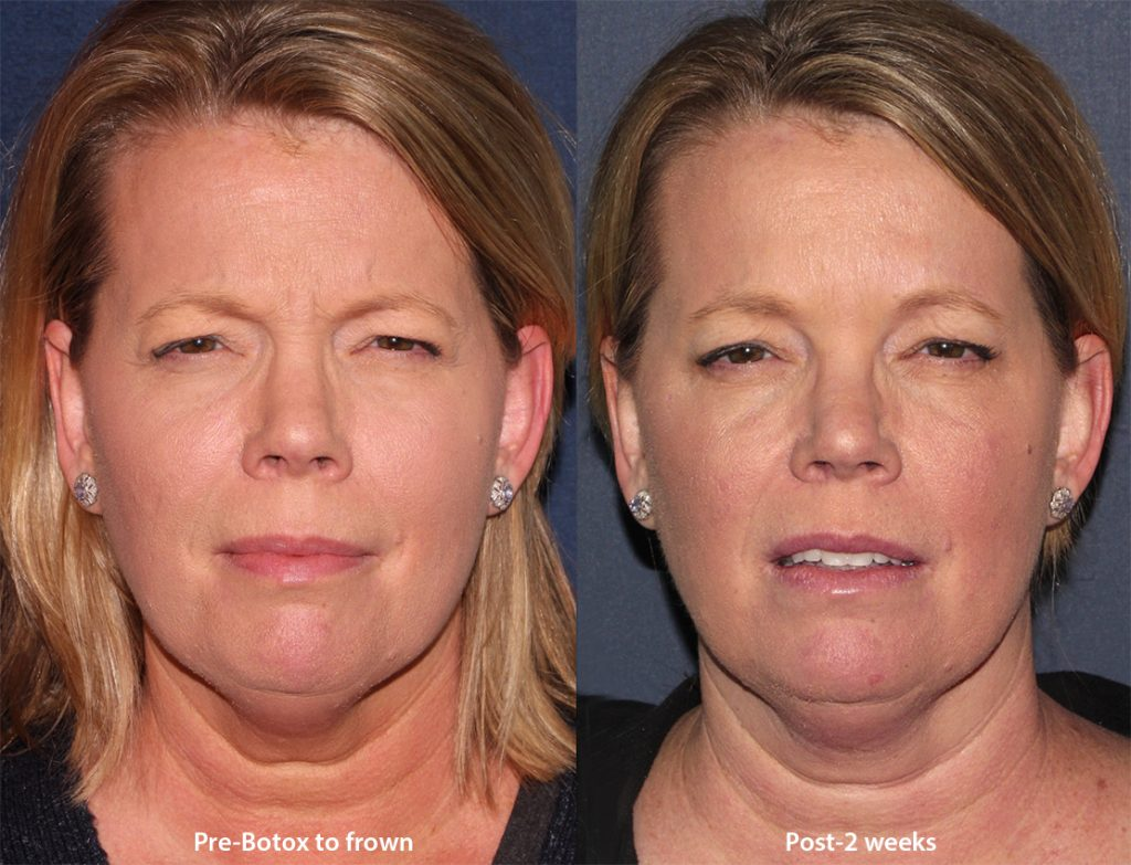 Actual unretouched patient before and after Botox injections to treat frown lines by Dr. Wu. Disclaimer: Results may vary from patient to patient. Results are not guaranteed.