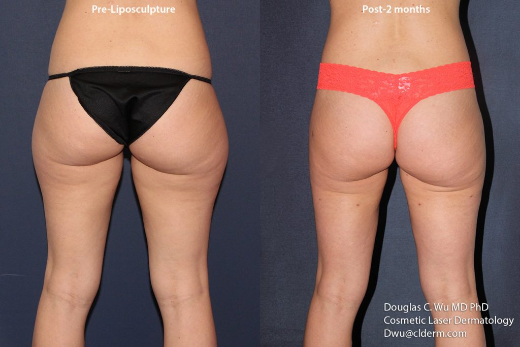 Actual unretouched patient before and two months after liposuction of the thighs and buttocks by Dr. Wu. Disclaimer: Results may vary from patient to patient. Results are not guaranteed.