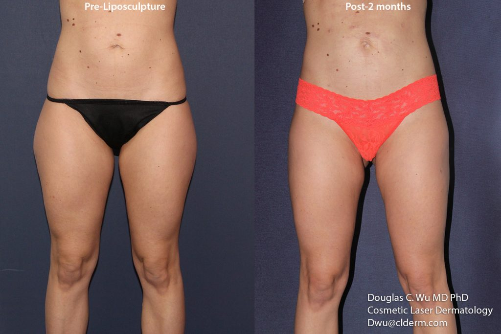Actual unretouched patient before and two months after liposuction of the abdomen and thighs by Dr. Wu. Disclaimer: Results may vary from patient to patient. Results are not guaranteed.