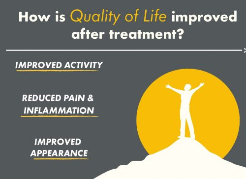 Quality of Life after a sclerotherapy treatment infographic for Cosmetic Laser Dermatology in San Diego.