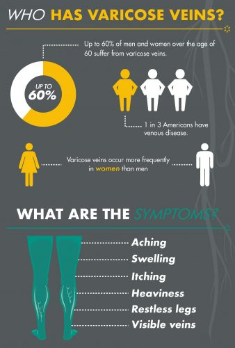 Who has varicose veins infographic for Cosmetic Laser Dermatology in San Diego