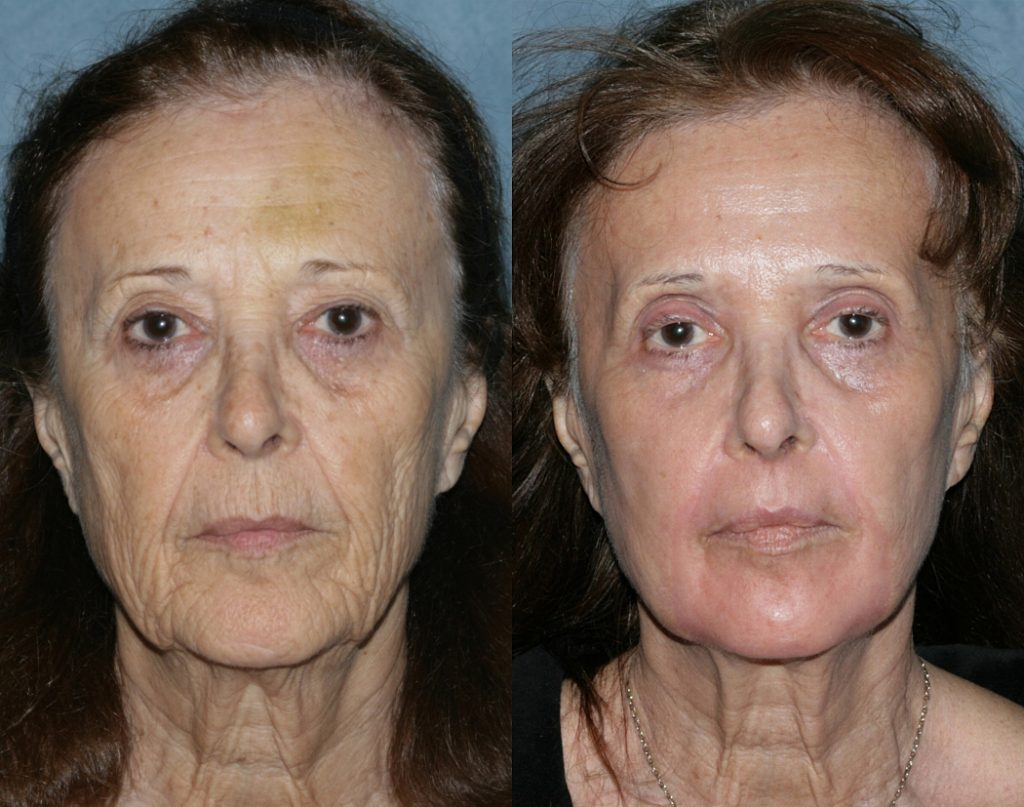 Actual unretouched patient before and after Take 10 treatment using Botox with CO2 and Erbium lasers by Dr. Groff. Disclaimer: Results may vary from patient to patient. Results are not guaranteed.