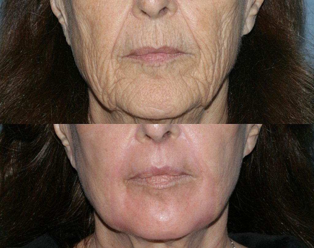 Actual unretouched patient before and after Take 10 treatment using a combination of laser and Botox by Dr. Groff. Disclaimer: Results may vary from patient to patient. Results are not guaranteed.