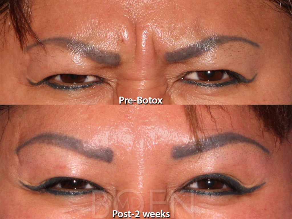 Actual unretouched patient before and after Botox injections for glabellar lines by Dr. Boen. Disclaimer: Results may vary from patient to patient. Results are not guaranteed.