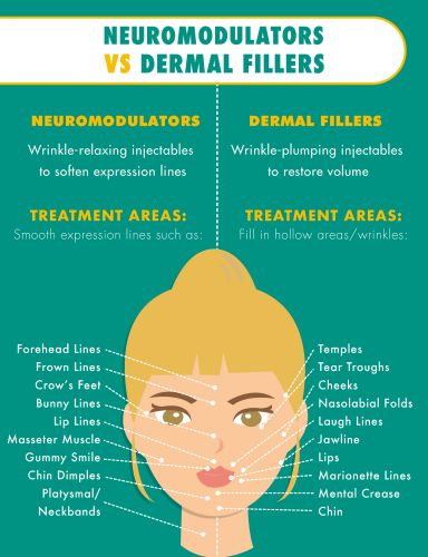Neuromodulators vs dermal fillers infographic: Treatment areas include forehead lines, frown lines, crow's feet, bunny lines, lip lines, temples, tear troughs, cheeks, nasolabial folds, laugh lines.