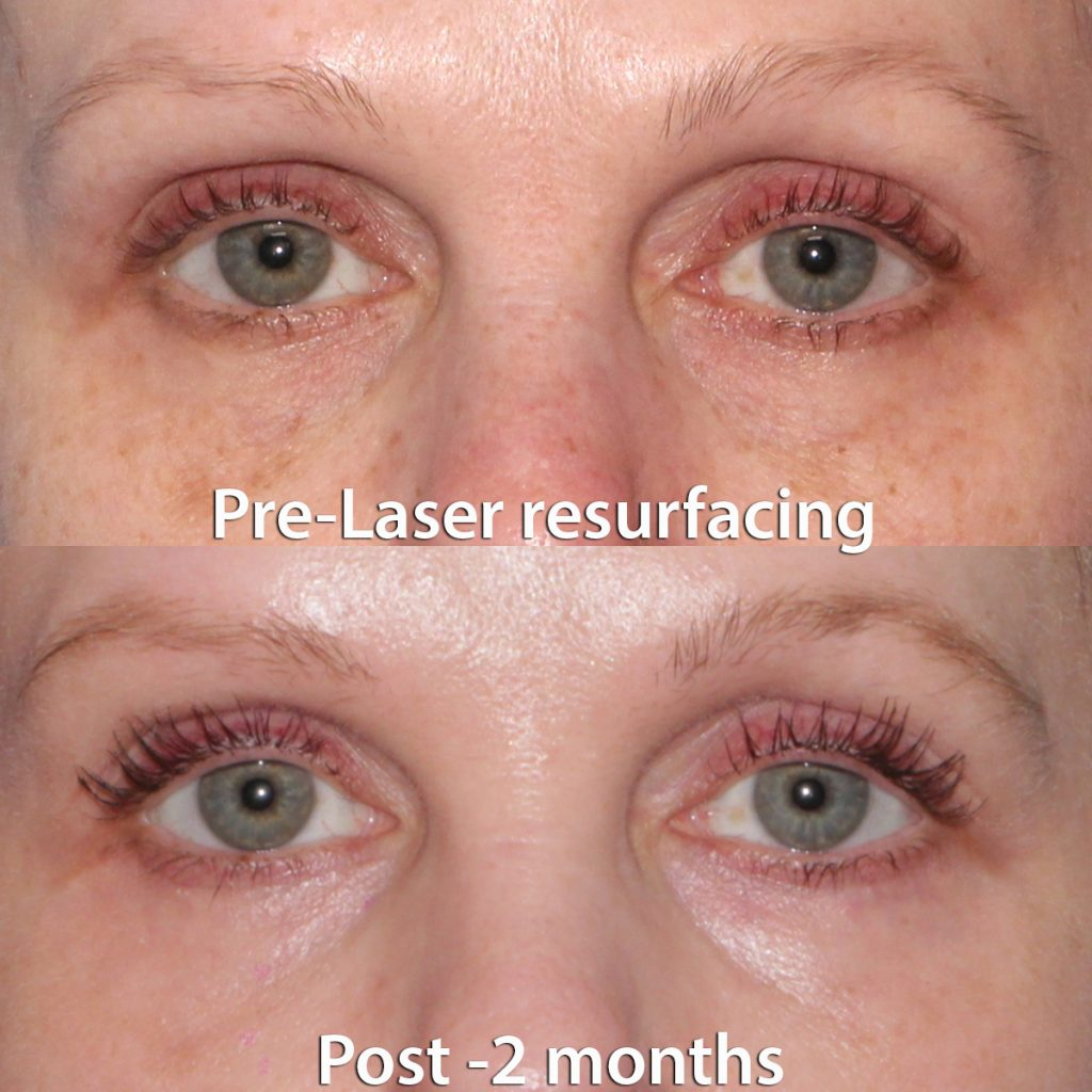 Actual un-retouched patient before and 2 months after laser skin resurfacing around the eyes by Dr. Groff. Disclaimer: Results may vary from patient to patient. Results are not guaranteed.