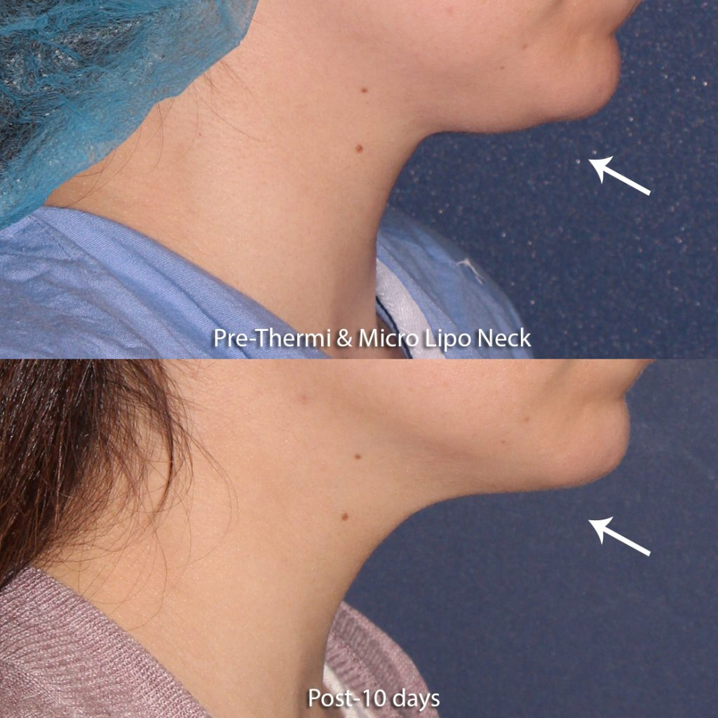 Actual unretouched patient before and after Thermi and Micro-Lipo for chin contouring by Dr. Groff. Disclaimer: Results may vary from patient to patient. Results are not guaranteed.
