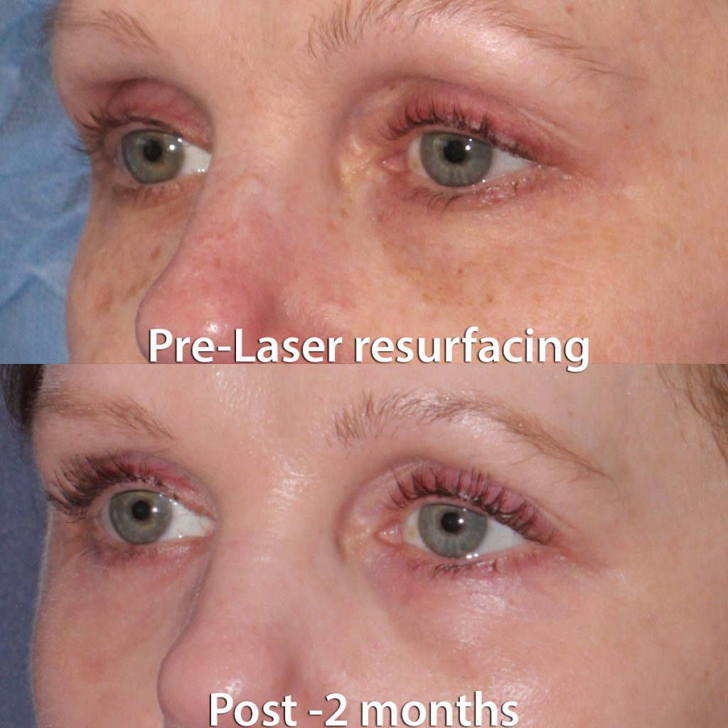 Actual unretouched patient before and 2 months after laser resurfacing around the eyes by Dr. Groff. Disclaimer: Results may vary from patient to patient. Results are not guaranteed.