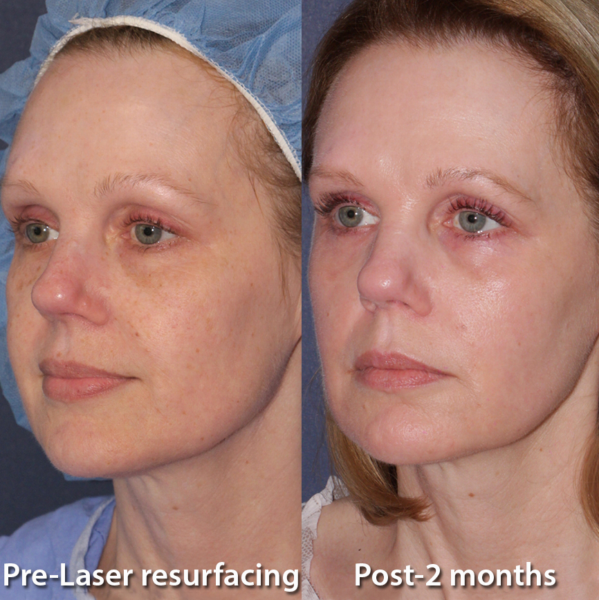 Actual unretouched patient before and 2 months after laser resurfacing to treat sun damage by Dr. Groff. Disclaimer: Results may vary from patient to patient. Results are not guaranteed.