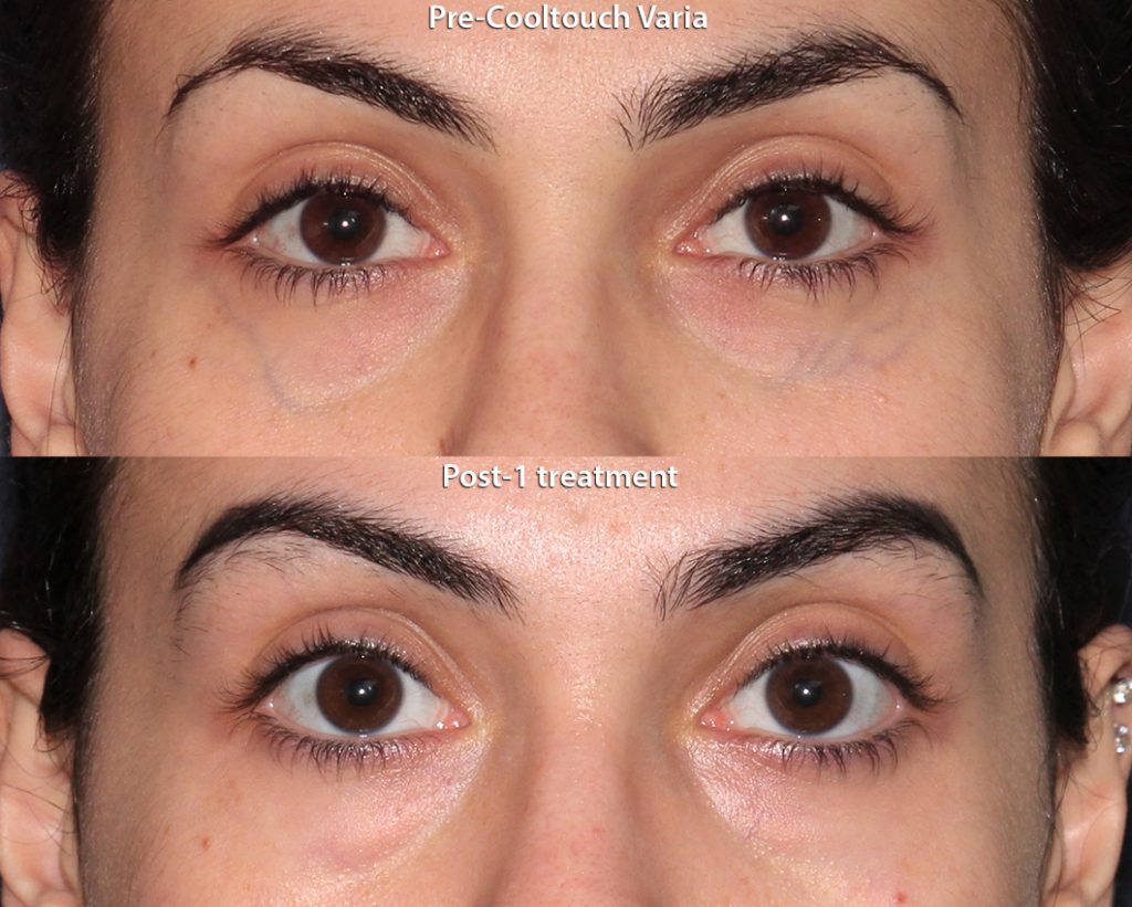 Actual unretouched patient before and after CoolTouch Varia to treat veins under the eyes by Dr. Groff. Disclaimer: Results may vary from patient to patient. Results are not guaranteed.