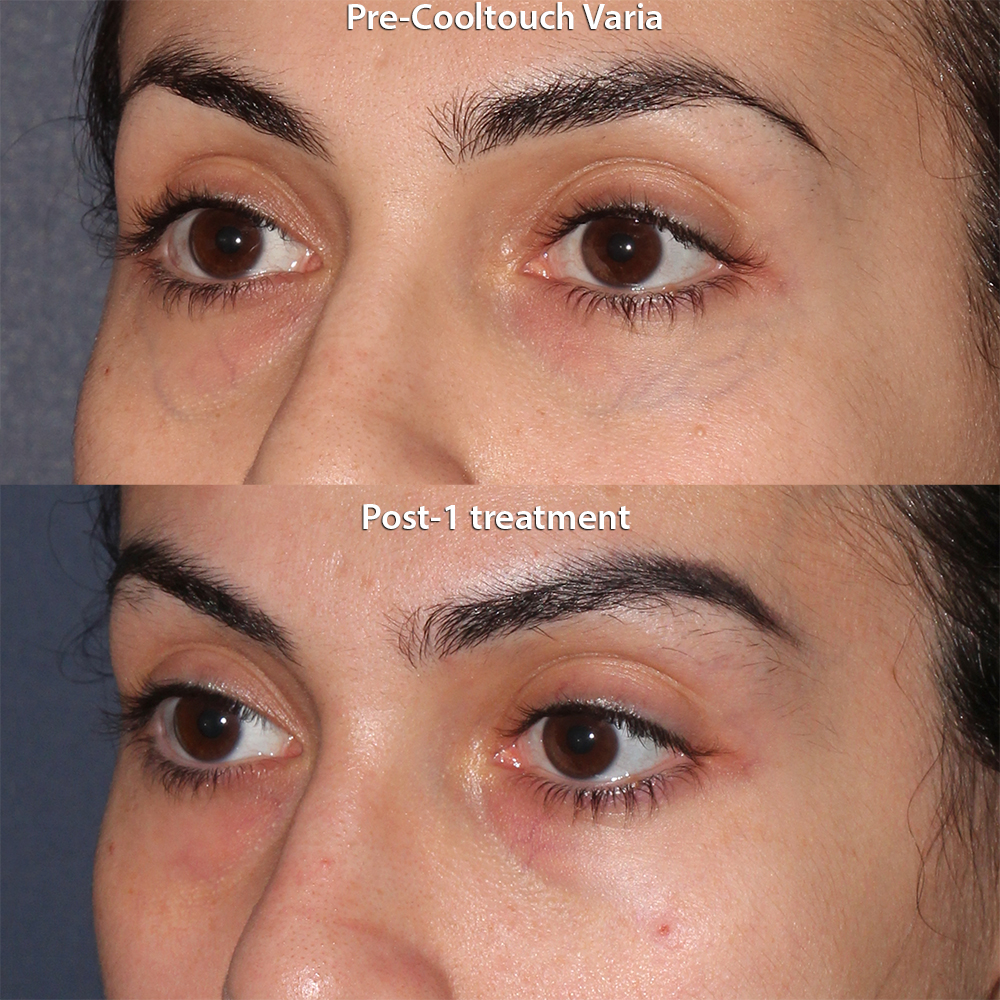 Actual unretouched patient before and after CoolTouch Varia to address veins under the eyes by Dr. Groff. Disclaimer: Results may vary from patient to patient. Results are not guaranteed.