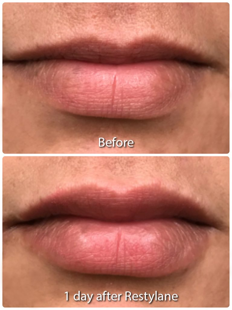 Actual un-retouched patient before and after Restylane Refyne in the lips by Dr. Monica Boen. Disclaimer: Results may vary from patient to patient. Results are not guaranteed.