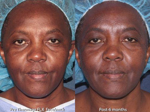 Before and after front image of Thermage treatment on a female's face performed by Leysin Fletcher, PA-C, at our San Diego med spa