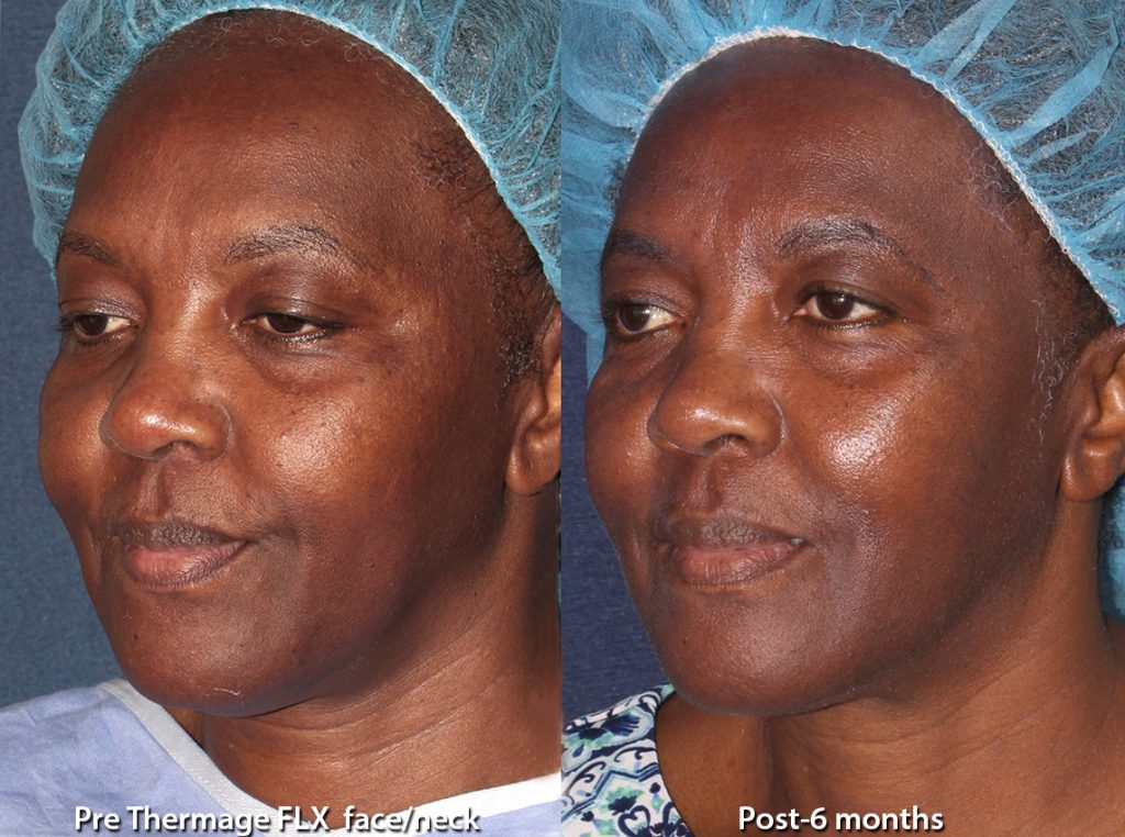 Actual un-retouched patient before and after Thermage skin tightening by Leysin Fletcher, PA-C. Disclaimer: Results may vary from patient to patient. Results are not guaranteed.