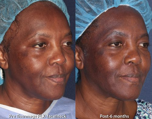 Before and after oblique image of Thermage treatment on a female's face performed by Leysin Fletcher, PA-C, at our San Diego med spa