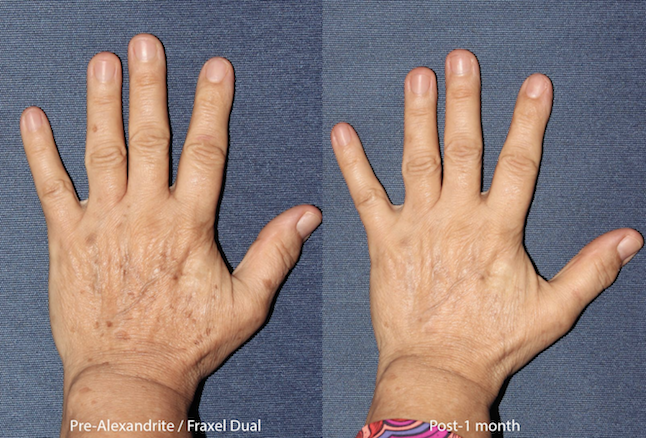 Actual unretouched patient before and 1 month after the Alexandrite laser for hand rejuvenation by Dr. Groff. Disclaimer: Results may vary from patient to patient. Results are not guaranteed.