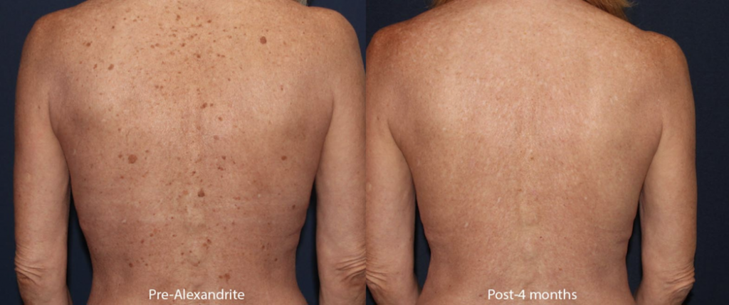 Actual unretouched patient before and 4 months after Alexandrite laser treatment by Dr. Groff. Disclaimer: Results may vary from patient to patient. Results are not guaranteed.
