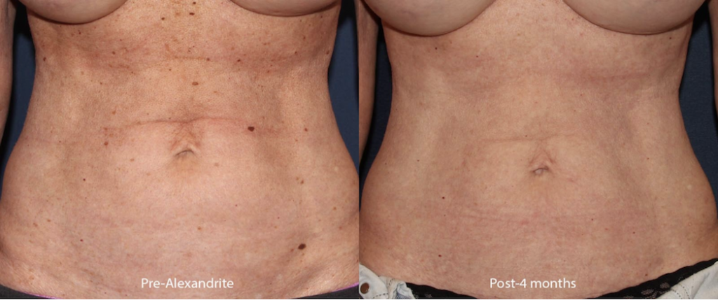 Actual unretouched patient before and 4 months after using the Alexandrite laser to treat sun damage by Dr. Groff. Disclaimer: Results may vary from patient to patient. Results are not guaranteed.