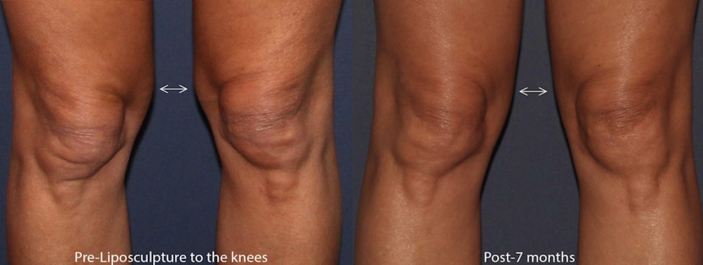 Actual unretouched patient before and 7 months after liposculpture to sculpt the knees by Dr. Groff . Disclaimer: Results may vary from patient to patient. Results are not guaranteed.