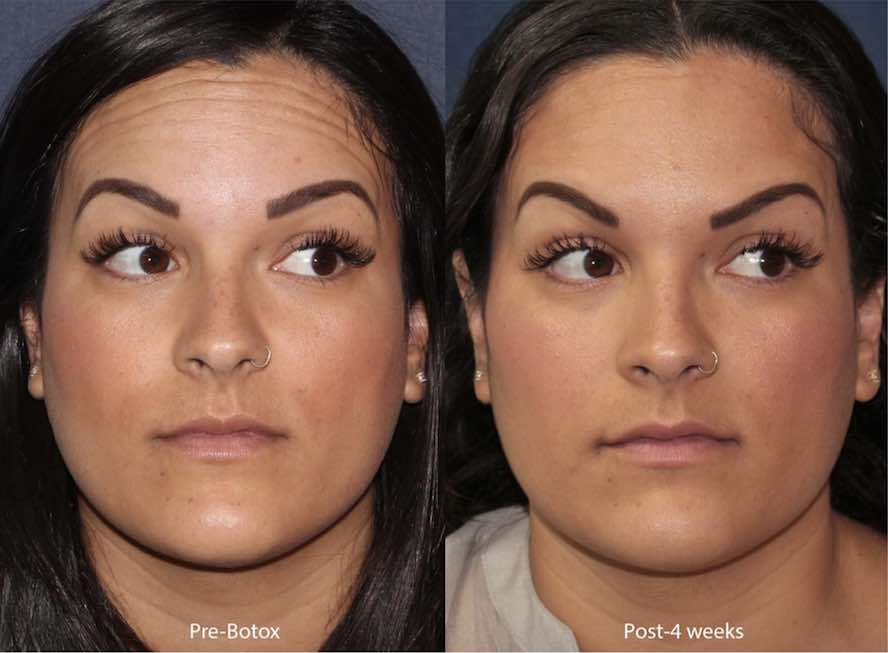 Actual unretouched patient before and after Botox injections for forehead lines by Dr. Wu. Disclaimer: Results may vary from patient to patient. Results are not guaranteed.