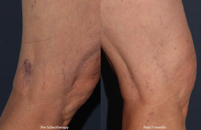 Actual unretouched patient before and after sclerotherapy to treat leg veins by Dr. Wu. Disclaimer: Results may vary from patient to patient. Results are not guaranteed.