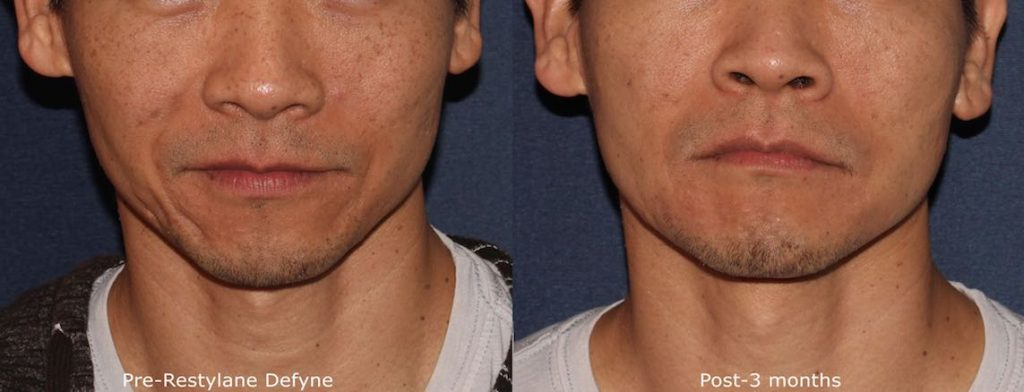 Actual unretouched patient before and after Restylane Defyne for acne scars by Dr. Wu. Disclaimer: Results may vary from patient to patient. Results are not guaranteed.