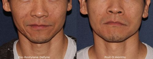 Before and after front image of Restylane Defyne treatment on a male's acne scars performed by Dr. Wu at our San Diego medical spa