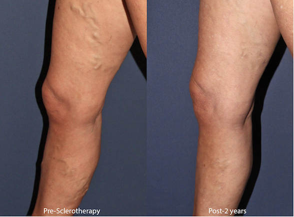 Actual unretouched patient before and after sclerotherapy for leg veins by Dr. Wu. Disclaimer: Results may vary from patient to patient. Results are not guaranteed.