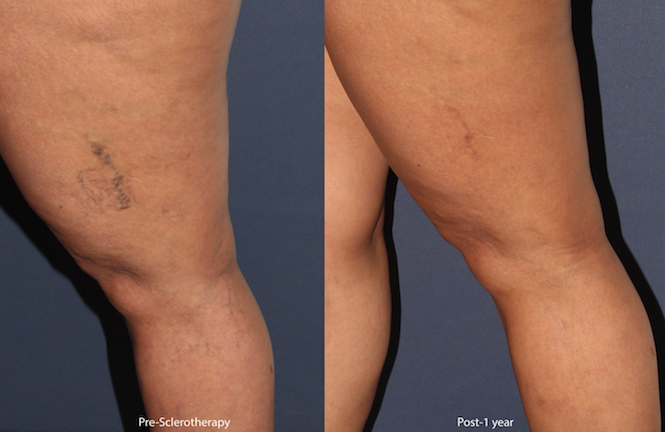 Actual unretouched patient before and after sclerotherapy treatment for leg veins by Dr. Wu. Disclaimer: Results may vary from patient to patient. Results are not guaranteed.