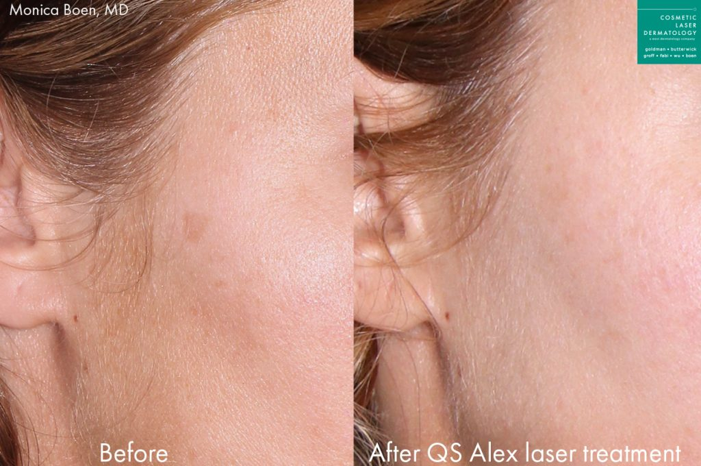Actual unretouched patient before and after QS Alexandrite laser treatment for lentigo by Dr. Boen. Disclaimer: Results may vary from patient to patient. Results are not guaranteed.