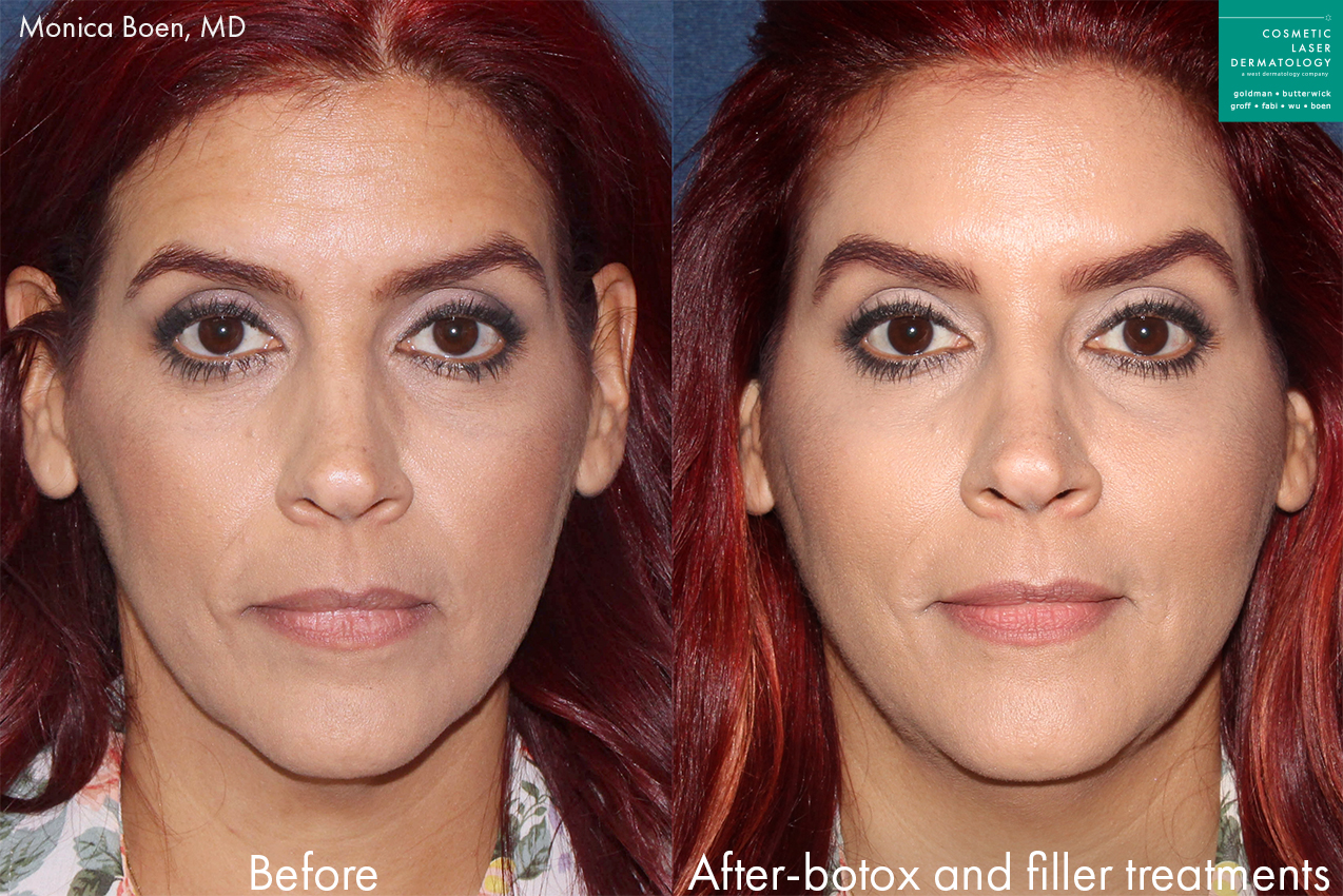 Actual unretouched patient before and after Botox and fillers to treat wrinkles and add volume to midface by Dr. Boen. Disclaimer: Results may vary from patient to patient. Results are not guaranteed.