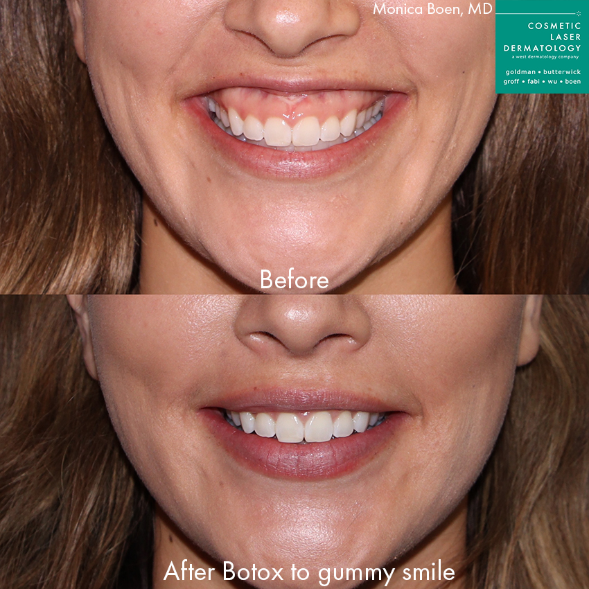 Actual unretouched patient before and after Botox injections to treat a gummy smile by Dr. Boen. Disclaimer: Results may vary from patient to patient. Results are not guaranteed.