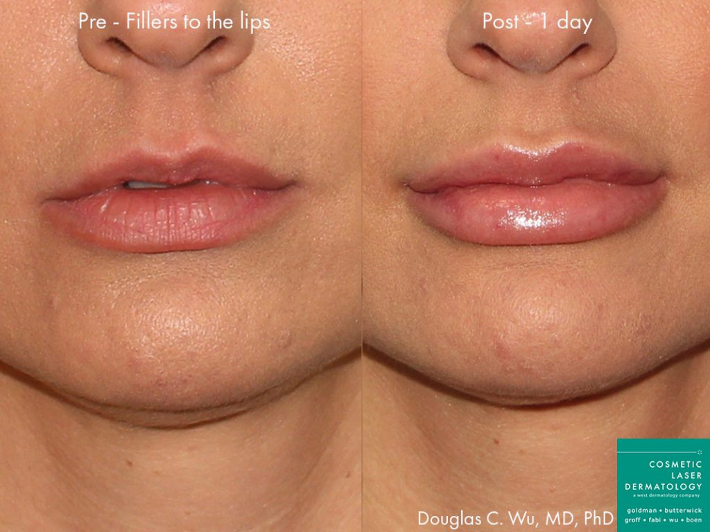 Actual unretouched patient before and after injectable fillers to augment the lips by Dr. Wu. Disclaimer: Results may vary from patient to patient. Results are not guaranteed.