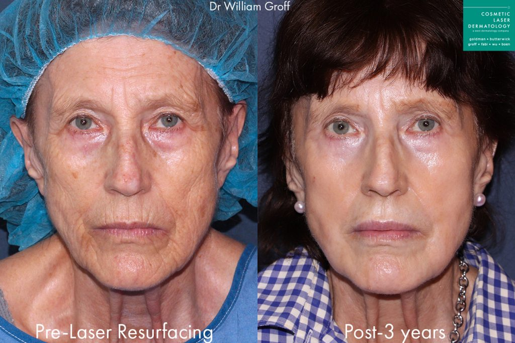 Actual unretouched patient before and 3 years after laser resurfacing by Dr. Groff. Disclaimer: Results may vary from patient to patient. Results are not guaranteed.